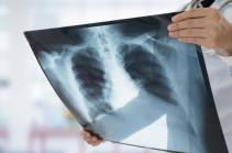 В Китае за выходные зафиксировали более 130 новых случаев пневмонии