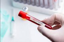 Four new confirmed coronavirus cases recorded in Artsakh