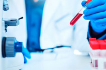 В Гегаркунике число подтвержденных случаев заражения коронавирусом достигло 476