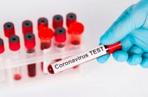 Արցախում կորոնավիրուսի վարակման 3 նոր դեպք է գրանցվել