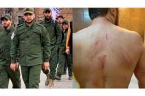 «Հեղափոխության պահապաններ» խմբի անդամի նկատմամբ բռնություն գործադրելով խուլիգանություն կատարելու համար մեղադրանք է առաջադրվել երկու անձի