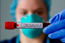 Հայաստանում մեկ օրում հաստատվել է կորոնավիրուսի 52 նոր դեպք, մահացել է 8 մարդ
