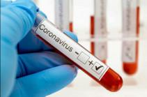 Վրաստանում մեկ օրում գրանցվել է կորոնավիրուսի 15 նոր դեպք