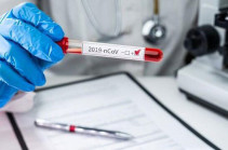 Number of coronavirus cases grow by 1,589 in a day, 34 new deaths recorded