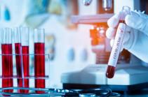 В Армении число зараженных коронавирусом увеличилось на 83, скончались 17 человек