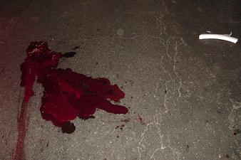Մեծամոր քաղաքում ոստիկանը վրաերթի է ենթարկել 12-ամյա երեխային