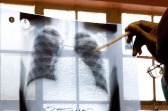 Туберкулез в Армении