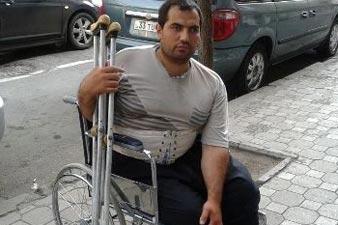 Փղախտով հիվանդ Աշոտը օգնության կարիք ունի. Նրան գումար է պետք, որ դեղ գնի