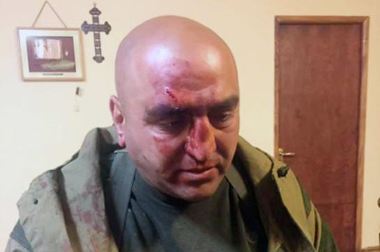 Փաշինյանի կողմնակցի վրա զինված հարձակում գործած «Մանախը» ձերբակալվել է