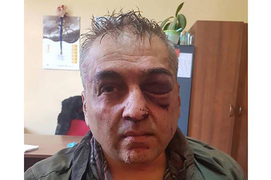 Совершившим нападение набанк вЕреване оказался полковник милиции