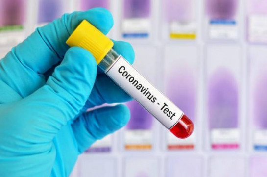 Number of coronavirus cases in Armenia grows by 322 in past 24 hours, reaching 5,928, five new deaths reported