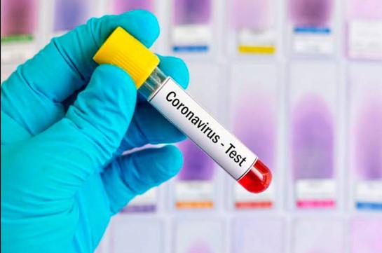 В Армении число зараженных коронавирусом достигло 9282, число смертей – 181