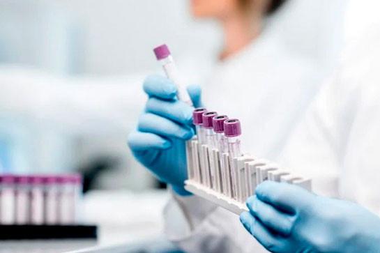 Artsakh records 6 new coronavirus cases