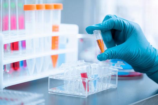 За сутки в Армении подтверждено 557 новых случаев коронавируса