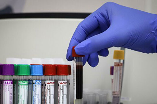 В Грузии выявили четыре новых случая заражения коронавирусом