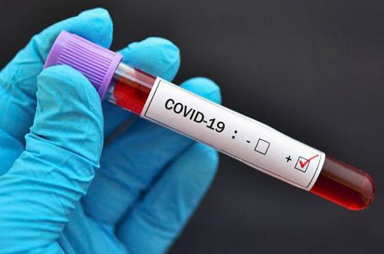 115 Active Cases of Coronavirus Recorded in Georgia