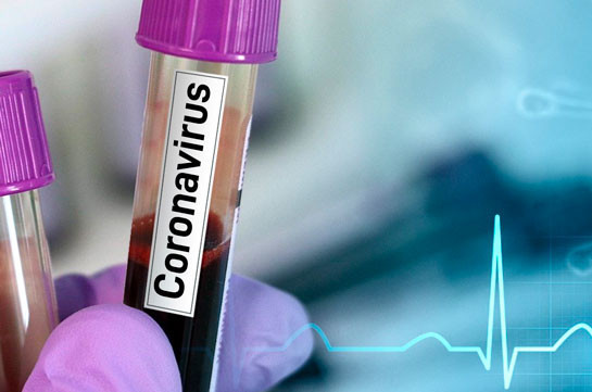 Number of coronavirus cases grows by 239 in Armenia in 24 hours, 10 new deaths reported