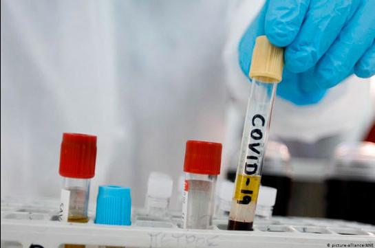 В Арцахе выявлено 4 новых случаев заражения коронавирусом