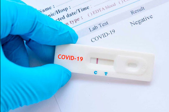 Number of coronavirus cases grows by 288 in Armenia in 24 hours, 2 new deaths reported