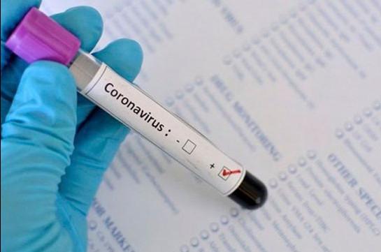 Վրաստանում մեկ օրում գրանցվել է կորոնավիրուսի  9 նոր դեպք
