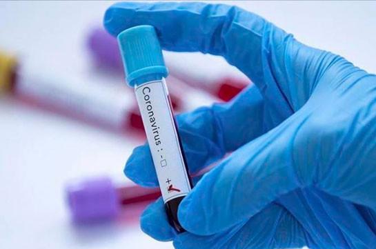 В Армении число зараженных коронавирусом увеличилось на 276, скончались 5 человек