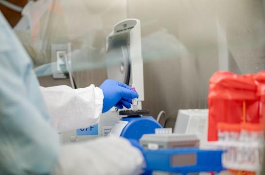 Չեխիայում մեկ օրում հայտնաբերվել է կորոնավիրուսի 330 նոր դեպք