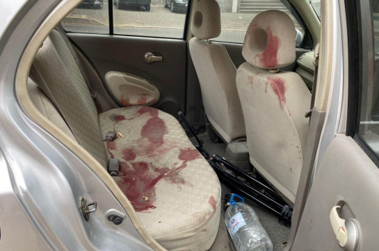 Car transporting wounded journalists (photos)