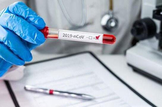 В Армении число зараженных коронавирусом увеличилось на 1476, скончались 30 человек