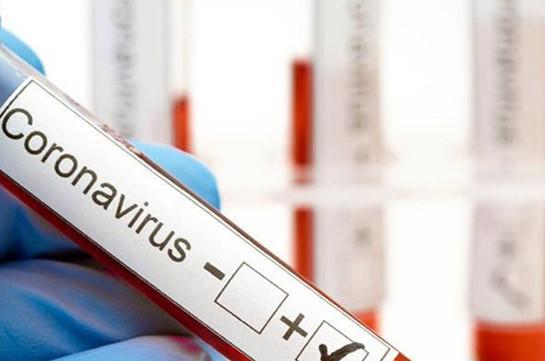 В Армении число зараженных коронавирусом увеличилось на 307, скончались 6 человек