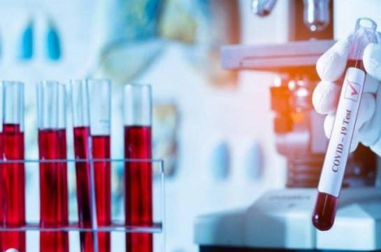Արցախում հաստատվել է կորոնավիրուսի 8 նոր դեպք