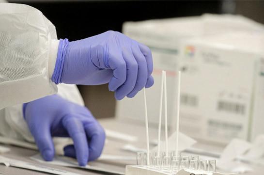 Ռուսաստանում մեկ օրում հայտնաբերվել է կորոնավիրուսային վարակի 8164 դեպք