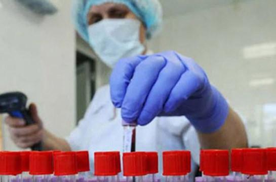 Արցախում կորոնավիրուսային հիվանդությամբ այս պահին ստացիոնար բուժում է ստանում 14 վարակակիր