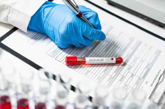 В Армении число зараженных коронавирусом увеличилось на 462, скончались 14 человек