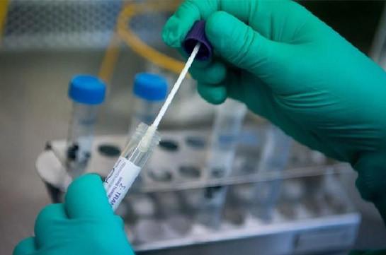В Арцахе выявлены 36 случаев заражения коронавирусом